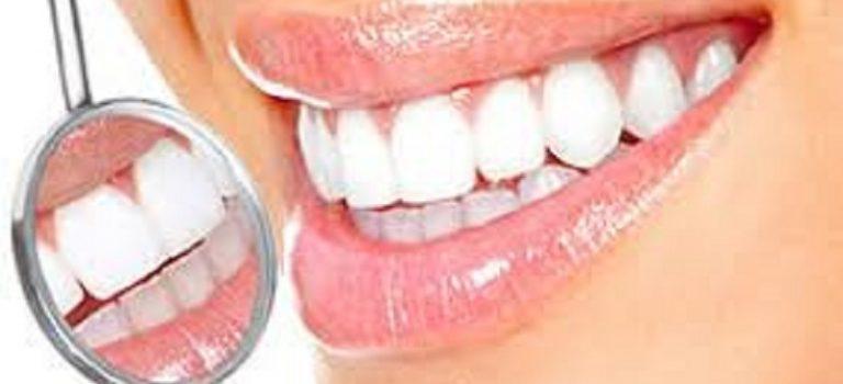 Отбеливание зубов: как не навредить своей улыбке