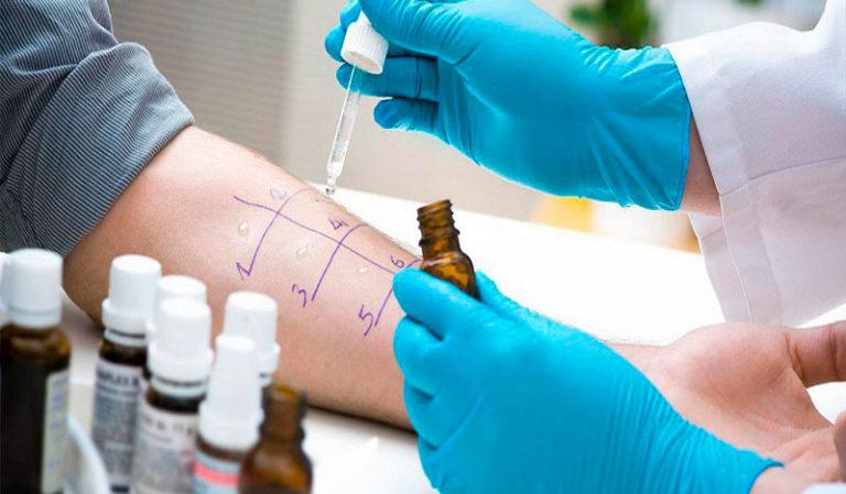 Аллергия: что вы о ней должны знать